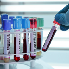 Laboratory sample tubes containing blood are being picked up by a gloved hand.